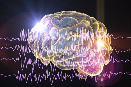 Conceito de conscincia de epilepsia. Cérebro, e, encephalography, em, epilepsy, paciente, durante, ataque convulsivo, 3d, ilustração, em, roxo, cor