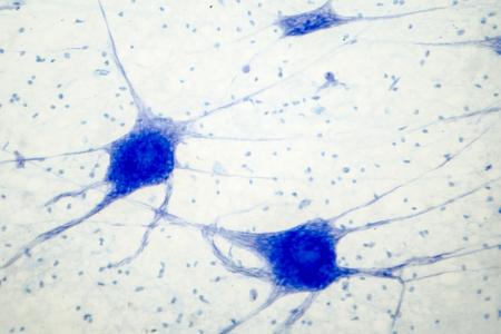 Histologie des menschlichen Hirngewebes. Foto unter dem Mikroskop, lichtmikroskopische Aufnahme von Neuronen und Gliazellen Standard-Bild
