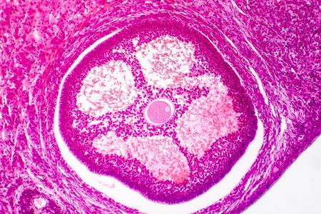 Light micrograph of human ovary showing Graafian follicle containing secondary oocyte. Ovary histology. Light microscopy, hematoxylin and eosin stain