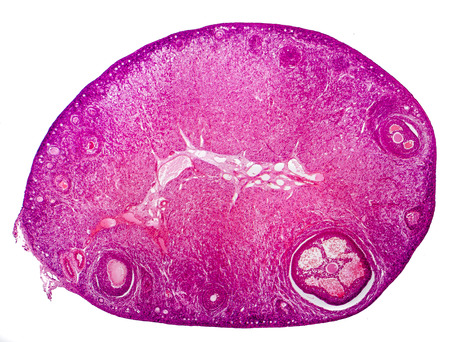 Light micrograph of human ovary showing primordial, primary and secondary follicles isolated on white background. Light microscopy, hematoxylin and eosin stain