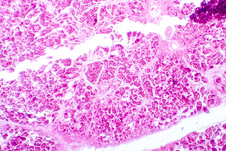 Histology of human pancreatic tissue. Light micrograph of pancreas showing islets where insulin is produced