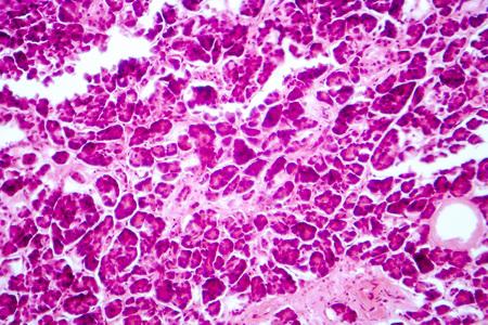 Histologie des menschlichen Pankreasgewebes. Lichtmikroskopische Aufnahme der Bauchspeicheldrüse mit den Inseln, auf denen Insulin produziert wird