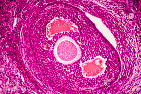 Light micrograph of human ovary showing follicle. Light microscopy, hematoxylin and eosin stain