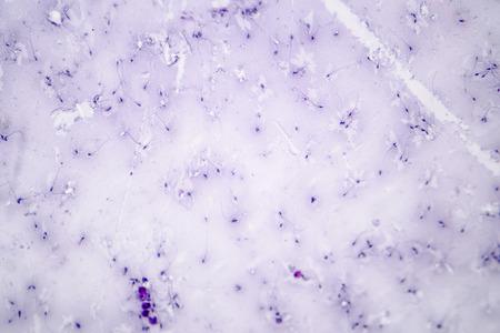 Sperm morphology. Semen photo under microscope. Micrograph showing spermatozoons