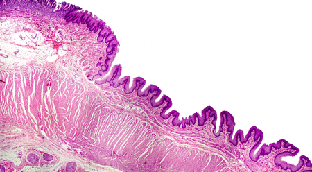 Histology of human stomach, cardiac region. Light micrograph, isolated on white background, hematoxylin and eosin staining
