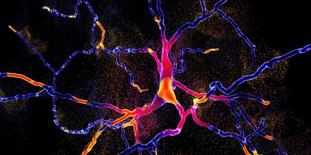 Degeneration of dopaminergic neuron, a key stage of development of Parkinson's disease, 3D illustration
