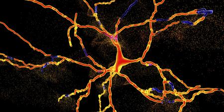 Degeneration of dopaminergic neuron, a key stage of development of Parkinsons disease, 3D illustration