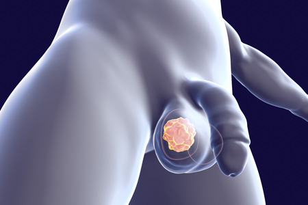 Testicular cancer medical concept. Cancer of testis, 3D illustration