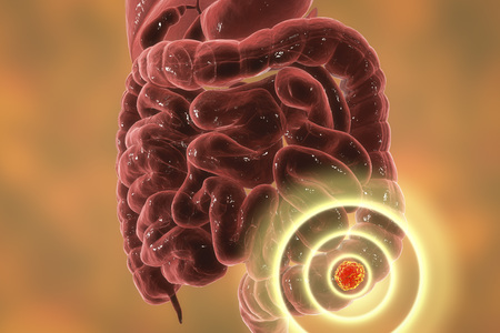 Colorectal cancer awareness medical concept. Concept of cancer treatment and prevention, 3D illustration