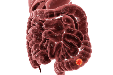 Colorectal cancer awareness medical concept, 3D illustration showing cancerous tumor inside large intestine