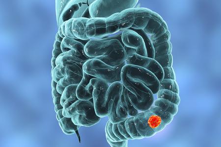 Colorectal cancer awareness medical concept, 3D illustration showing cancerous tumor inside large intestine