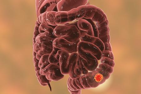 sensibilisation à la prostate sensibilisation à la prostate illustration de rendu 3d montrant flèche cervicale à l & # 39 ; intérieur vieux intestin