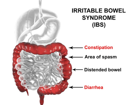 Irritable bowel syndrome IBS medical concept, 3D illustration showing spasms and distortion of large intestine Standard-Bild
