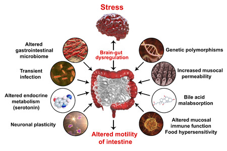 Pathophysiology of irritable bowel syndrome IBS, 3D illustration showing mechanisms of IBS development
