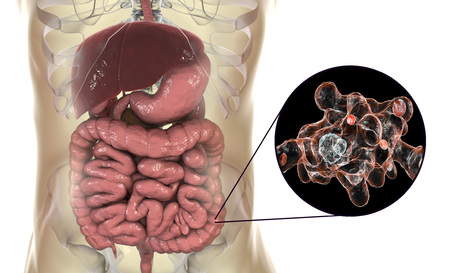 Entamoeba histolytica protozoan infection of large intestine. Parasite which causes amoebic dysentery and ulcers. 3D illustration