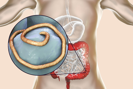 Helminths nematodes Enterobius in the gut. Threadworm which causes enterobiasis, 3D illustration showing close-up view of threadworms located in large intestine Stockfoto