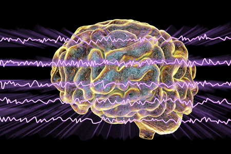 EEG Electroencephalogram, brain wave in awake state with mental activity, 3D illustration Reklamní fotografie - 97203481