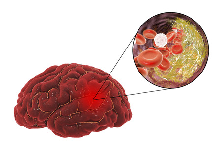 Ischemic brain stroke treatment and prevention concept, 3D illustration showing human brain and close-up view of destruction of cholesterol plaque inside brain artery Stock Photo