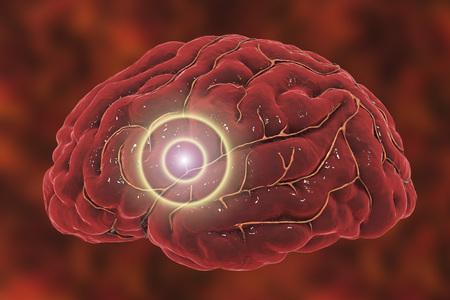 Koncepcja udaru mózgu. Migrena i bóle głowy koncepcyjne obraz, ilustracja 3D