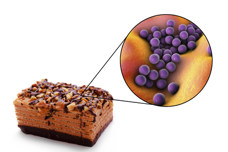 Staphylococcal food poisoning, medical concept, 3D illustration showing cake as a common source of food infection and close-up view of S. aureus bacteria contaminating food Imagens