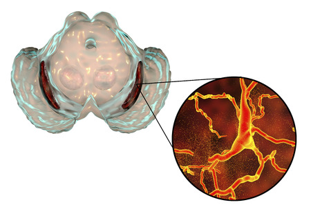 Substantia nigra, a basal banglia of the midbrain, in Parkinsons disease, 3D illustration showing decrease of its volume and degeneration of dopaminergic neurons in the pars compacta of the substantia nigra