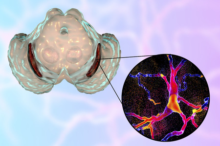Substantia nigra, a basal banglia of the midbrain, in Parkinson's disease, 3D illustration showing decrease of its volume and degeneration of dopaminergic neurons in the pars compacta of the substantia nigra