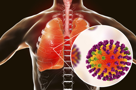 Flu viruses in human lungs, 3D illustration showing anatomy of human respiratory system and close-up view of influenza virus inside lungs 版權商用圖片
