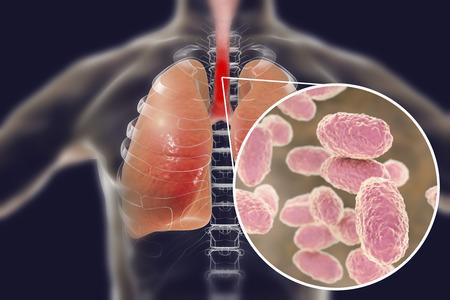 Whooping cough bacteria Bordetella pertussis in human airways Reklamní fotografie