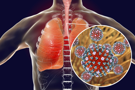 Flu viruses in human lungs, 3D illustration showing anatomy of human respiratory system and close-up view of influenza virus inside lungs Stock Photo