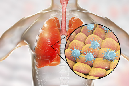 Viruses in human lungs, 3D illustration. Conceptual image for viral pneumonia, flu, MERS-CoV, SARS, Adenoviruses and other respiratory viruses 版權商用圖片 - 98234466