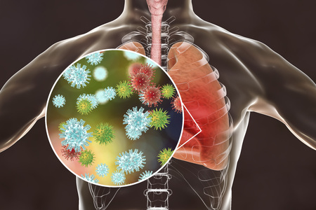 Viruses in human lungs, 3D illustration. Conceptual image for viral pneumonia, flu, MERS-CoV, SARS, Adenoviruses and other respiratory viruses
