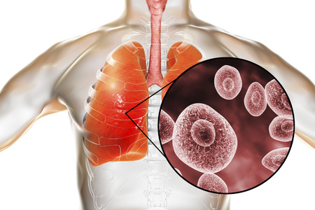 Pneumocystis jirovecii or carinii in human lungs, opportunistic fungus that causes pneumonia in patients with HIV, 3D illustration Banco de Imagens