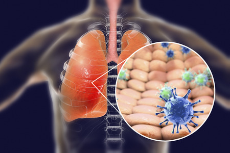 Viruses In Human Lungs, 3D Illustration. Conceptual Image For ...