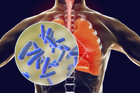 Bacteria pneumonia, medical concept, 3D illustration showing human lungs and close-up view of rod-shaped bacteria in lungs Stock Illustration - 98234516