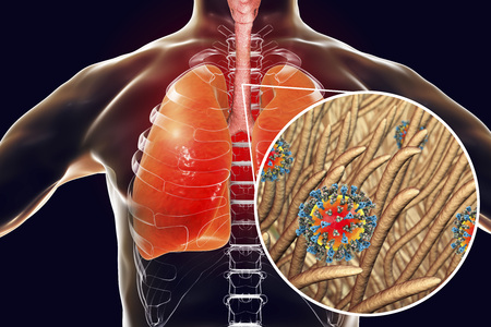 Measles viruses in human trachea, 3D illustration Stock Photo