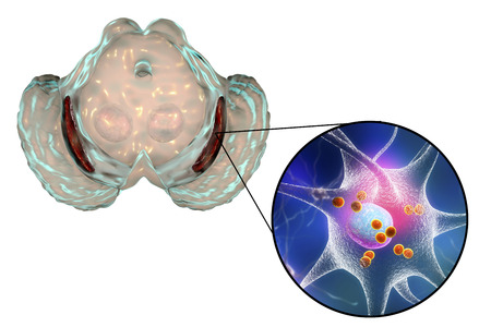 Black substance, basal banglia of the midbrain, in Parkinson's disease, 3D illustration showing decrease of its volume and Levy bodies inclusions in neurons in the pars compacta of black substance Banque d'images