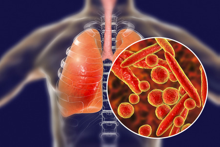 Mycoplasma pneumoniae bacteria in human lungs, 3D illustration. Medical concept for mycoplasma pneumonia