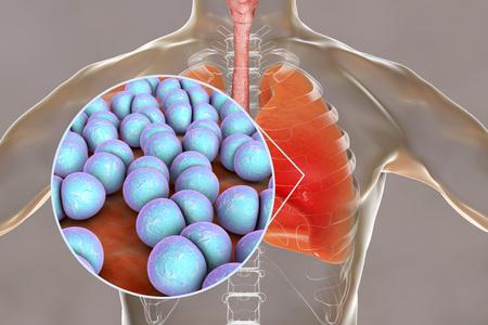 Pneumococcal pneumonia, medical concept. 3D illustration showing bacteria Streptococcus pneumoniae in human lungs