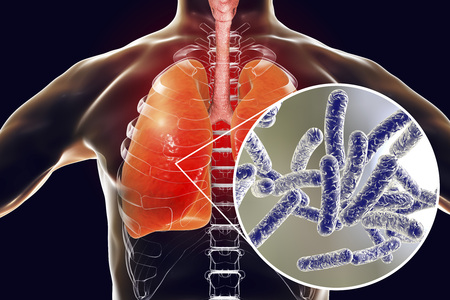 Legionella pneumophila bacteria in human lungs, 3D illustration, the causative agent of Legionnaires disease Stock Photo