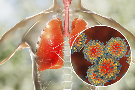 Measles viruses in human respiratory system, 3D illustration