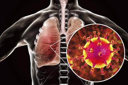 MERS virus, Meadle-East Respiratory Syndrome coronavirus in human lungs, 3D illustration Stockfoto