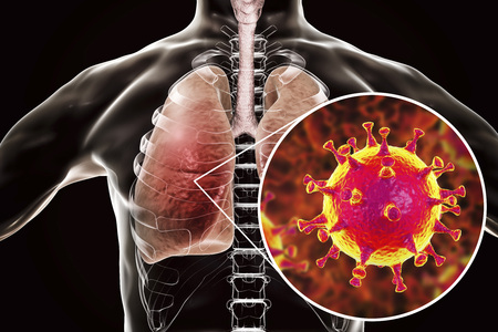 MERS virus, Meadle-East Respiratory Syndrome coronavirus in human lungs, 3D illustration Archivio Fotografico
