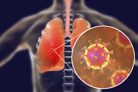MERS virus, Meadle-East Respiratory Syndrome coronavirus in human lungs, 3D illustration Stockfoto
