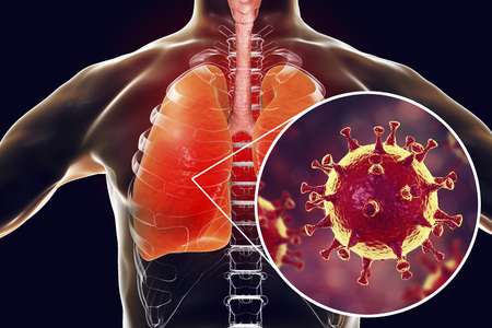 MERS virus, Meadle-East Respiratory Syndrome coronavirus in human lungs, 3D illustration Stock Illustration - 98234532