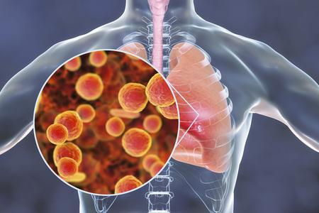Mycoplasma pneumoniae bacteria in human lungs, 3D illustration. Medical concept for mycoplasma pneumonia