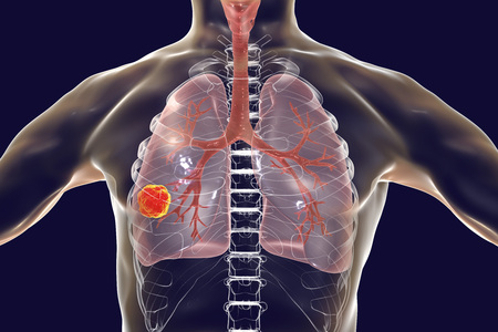 Lung cancer, medical concept, 3D illustration showing cancerous tumor inside human lung 版權商用圖片
