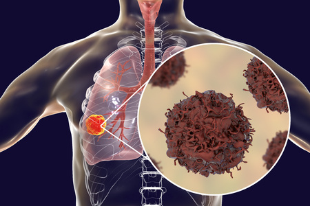 Lung cancer, tumor inside lung and close-up view of pulmonary cancer cells, illustration