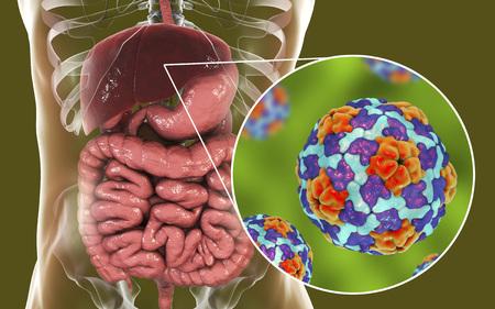 Hepatitis A viruses in liver, 3D illustration Stock Photo