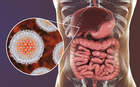 Concepto médico de infección por el virus de la hepatitis C, ilustración 3D