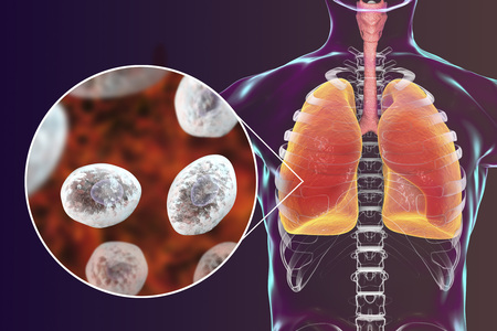 Pneumocystis jirovecii or carinii in human lungs, opportunistic fungus that causes pneumonia in patients with HIV, 3D illustration Stock Photo